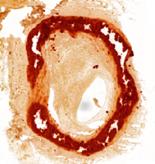 AR artery fiona